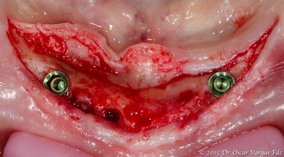 prótesis totales proceso